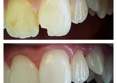 centro dentale cecina